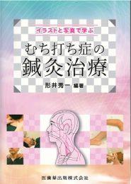 【和書】イラストと写真で学ぶむち打ち症の鍼灸治療